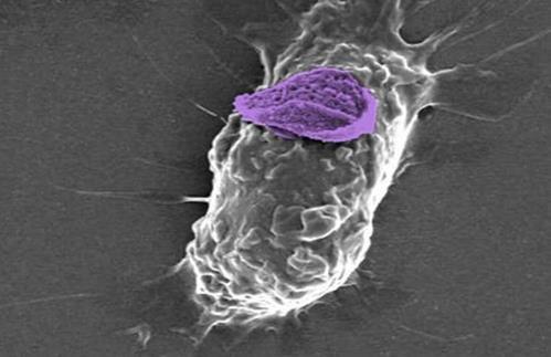 研究人员发现增强免疫细胞杀死癌症能力的方法