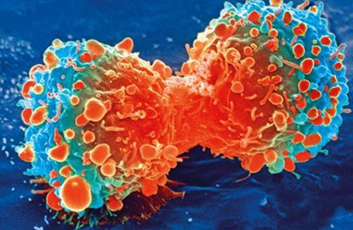 """杀死""""睡眠细胞""""可能会增强乳腺癌治疗"""