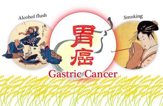 除了肝癌,饮酒同样增加胃癌风险
