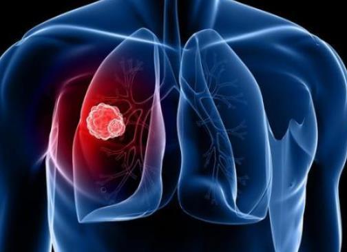 小细胞肺癌治疗新选择!