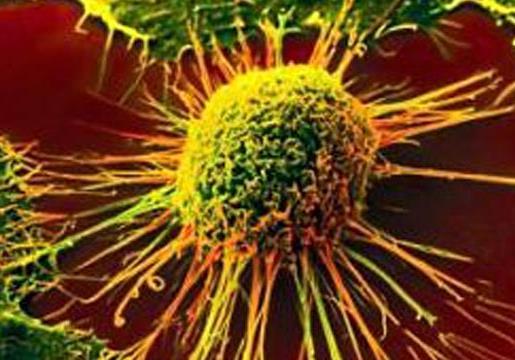 研究人员确定大肠癌免疫疗法的检查点靶标