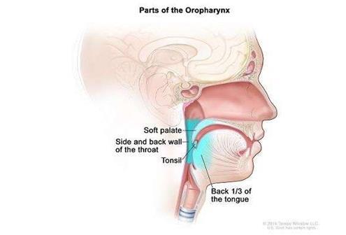 试验验证: HPV引起的喉癌,并不需要激烈的治疗