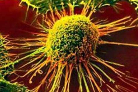 研究表明: 癌症转移开始的时间比想象的要早