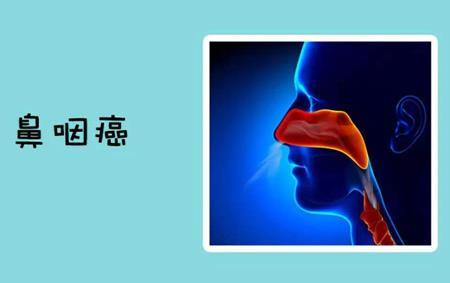 新型抗病毒靶向新药用于鼻咽癌