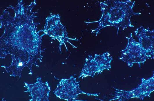 科学家揭示了新陈代谢的突变如何引发癌症