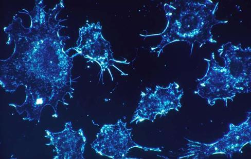 研究发现,当癌细胞无法自身产生脂肪时会摄入更多的脂肪