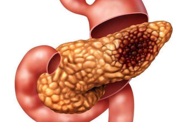 肝癌治疗最新进展 | 肝癌与TA