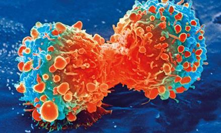 组合生物标记物可预测晚期膀胱癌患者对免疫检查点治疗的反应