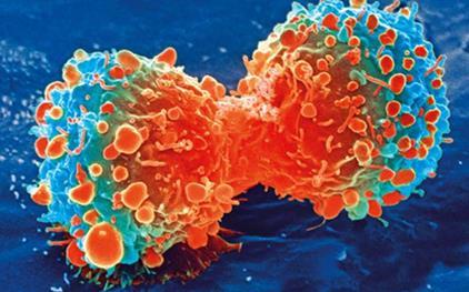 新药seclidmstat可能促进侵袭性卵巢癌的免疫作用