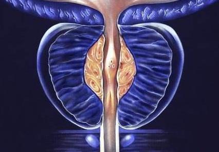 前列腺癌治疗对生活质量有重大影响