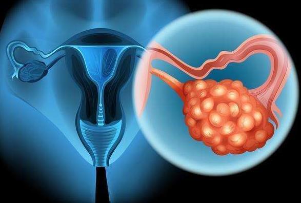 脂溶性他汀类药物可降低卵巢癌死亡率