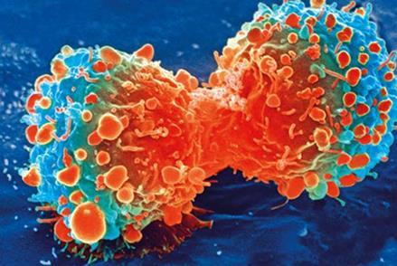 血小板计数较高可能提示癌症