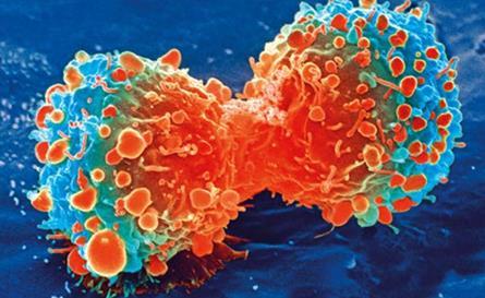 骨髓移植研究发现:接受全身照射的年轻女性患乳腺癌风险增加