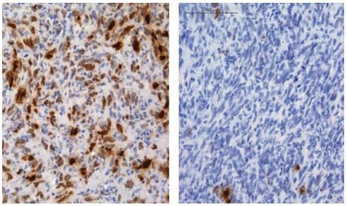 科学家发现神经胶质瘤化学耐药性机制