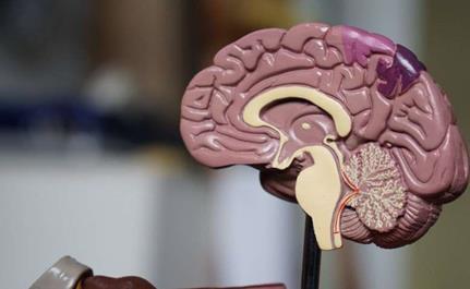 靶向超声--非侵入性新方法诊断脑癌