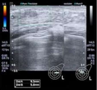 研究人员通过超声波治疗破坏癌细胞