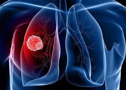 信迪利单抗可改善非小细胞肺癌无进展生存期