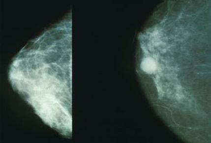 乳腺癌早期筛查可以挽救生命
