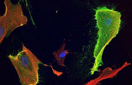 科学家找到三阴性乳腺癌的治疗新方向