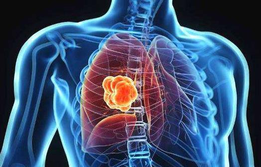 新疗法的普及使肺癌死亡率急剧下降