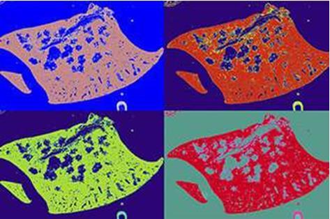 澳大利亚研究人员发现:自然杀手(NK)细胞是对抗肺癌的最佳武器