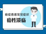 【癌症患者常见症状】——2引起性激素症状的治疗