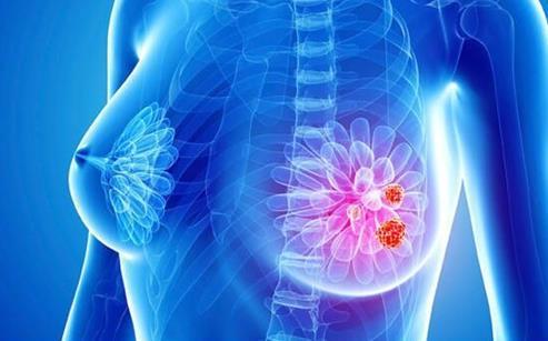 研究者发现在某些乳腺癌中,PLK4抑制剂可选择性攻击癌细胞