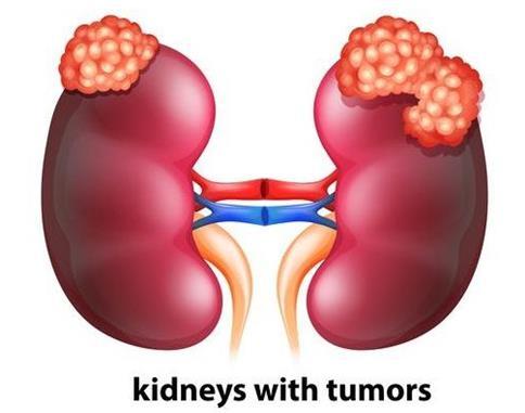 新的研究发现或将颠覆目前研究人员对肾细胞癌的认知