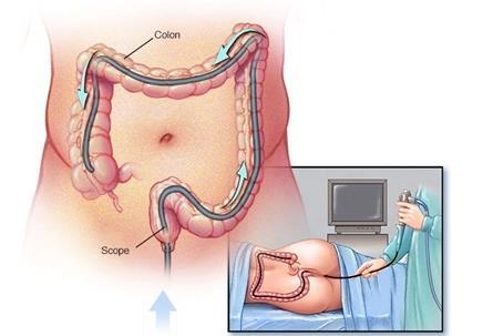 美国研究者发现:大肠癌高危患者缺乏结肠镜检查知识