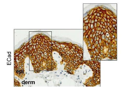 研究人员确定卡培他滨化疗中与手足综合征相关的遗传因素
