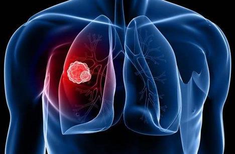 肺癌晚期有哪些症状