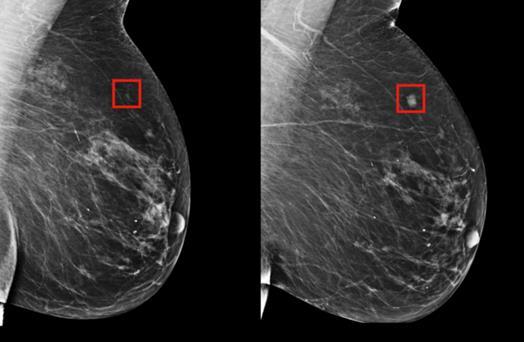 新的分析模型可检测乳腺癌中的突变