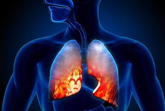 研究人员从肺鳞癌中发现新的靶向药物研究方向
