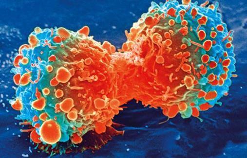 研究发现新的肿瘤标记物与胃癌的发生相关