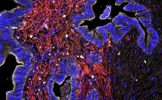 研究人员发现新的免疫受体