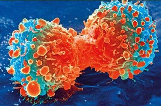 某些化学疗法会增加发生血液癌的可能性