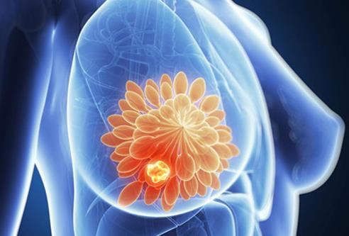 研究人员公布HRT(激素替代疗法)与乳腺癌风险的关系