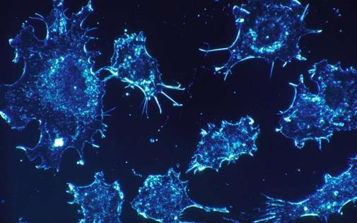 科学家设计出新的癌症免疫疗法来训练抗癌免疫系统
