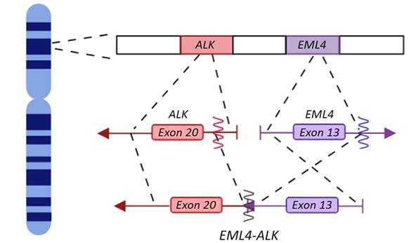 非小细胞肺癌患者如何应对ALK靶向药耐药