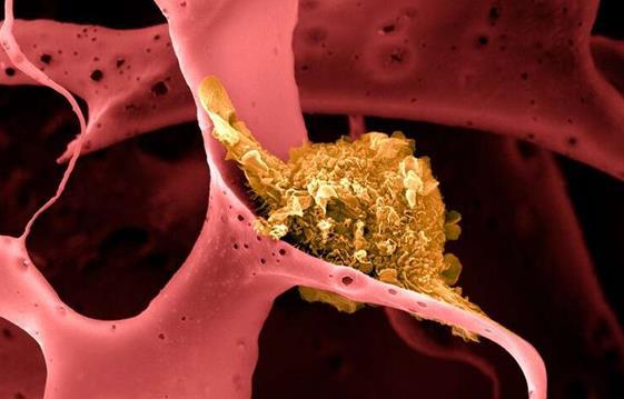 癌症疫苗新进展:结合化学疗法和免疫疗法来治疗三阴性乳腺癌
