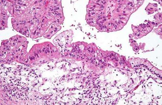 卵巢癌细胞之间相互协同是转移的关键