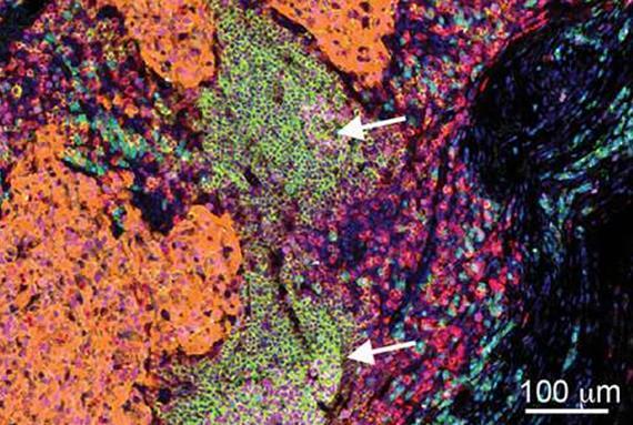 癌症免疫疗法不仅靠细胞毒性T细胞