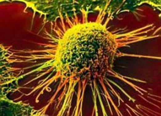 """对""""异常反应者""""的研究为癌症和潜在治疗方法提供了新思路"""