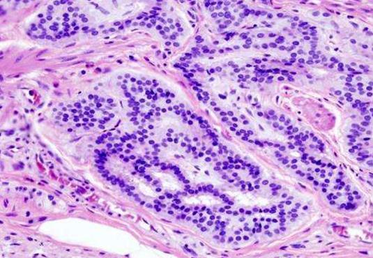 确定年轻女性大肠癌死亡率的差异性