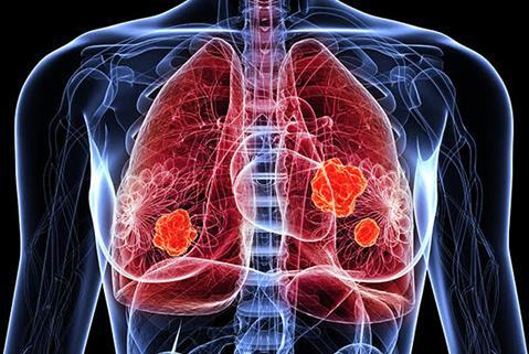 肺癌中晚期最多活多久,怎么做才能最大限度延长生存期