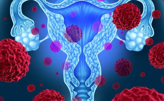 新的放疗技术可有效延长宫颈癌患者生存期