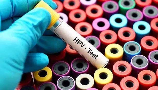 感染HPV就一定会的宫颈癌吗?