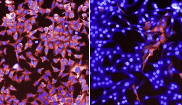 新研究揭示黑色素瘤细胞如何在靶向疗法中生存