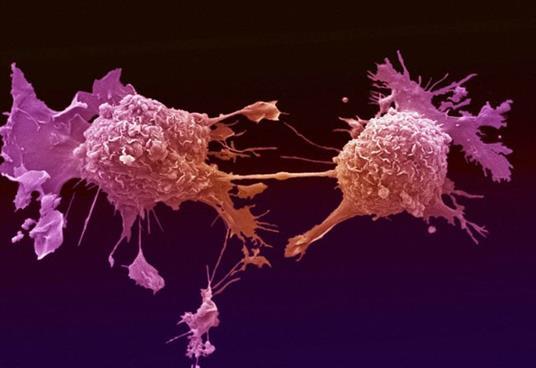 你知道吗每个人体内都存在癌细胞