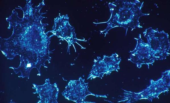 乳腺癌研究发现巨噬细胞在肿瘤治疗中有时候产生负面作用